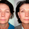 foto-lifting-viso-prima-dopo-01-1