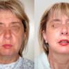 foto-lifting-viso-prima-dopo-03-1