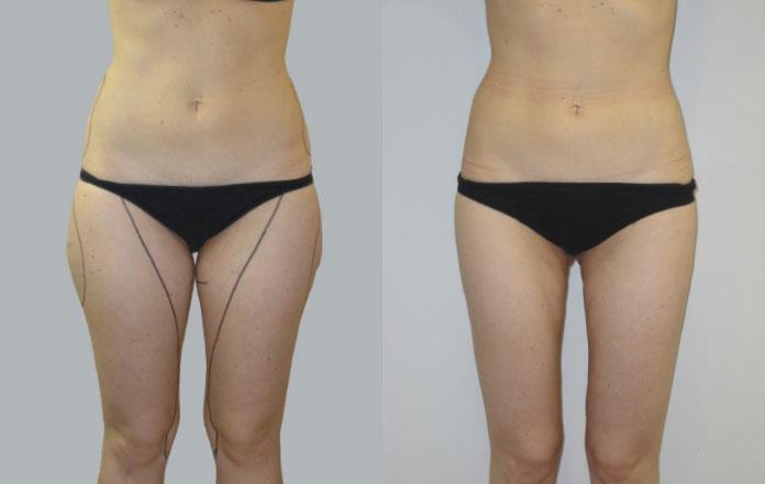 Liposuzione piccole 04 1 foto prima e dopo iei istituto for Interno coscia a corpo libero