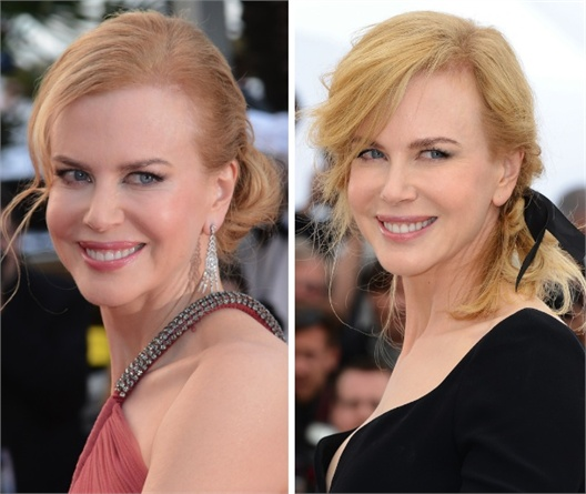 Nicole Kidman – Botox  1 – 0