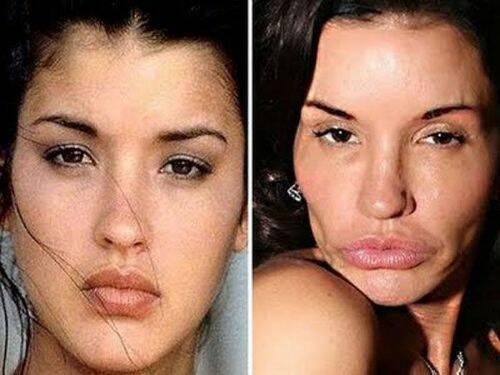 """quando la chirurgia estetica va """"troppo di moda"""""""