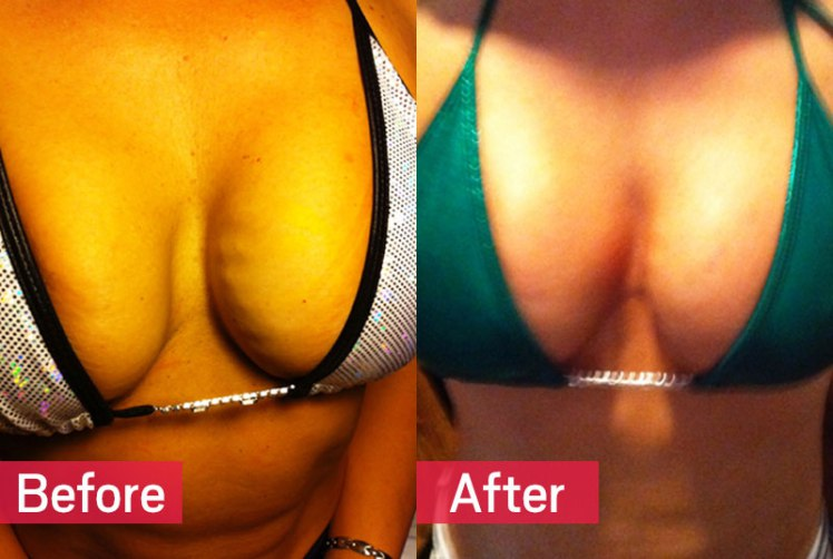 Sapete cos'è il Vampire Breast Lift?