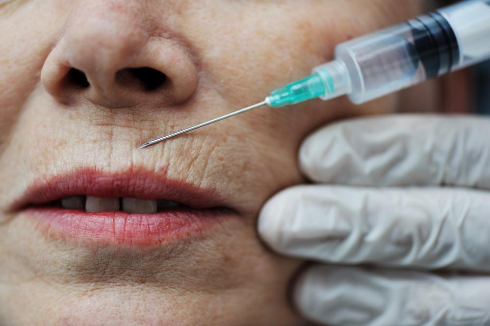 Chirurgia estetica: persone di ogni età ricorrono al bisturi