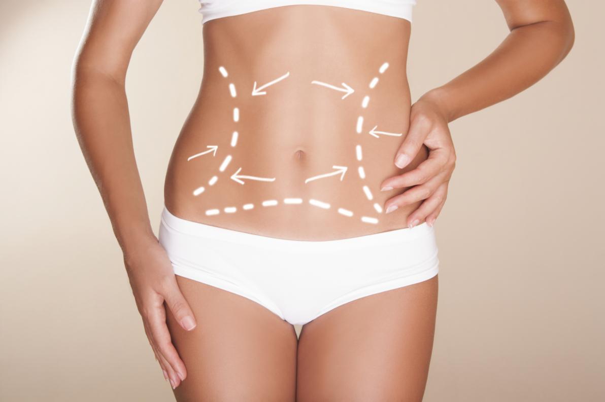 Liposuzione,Addominoplastica,BodyTite: cosa scegliere?
