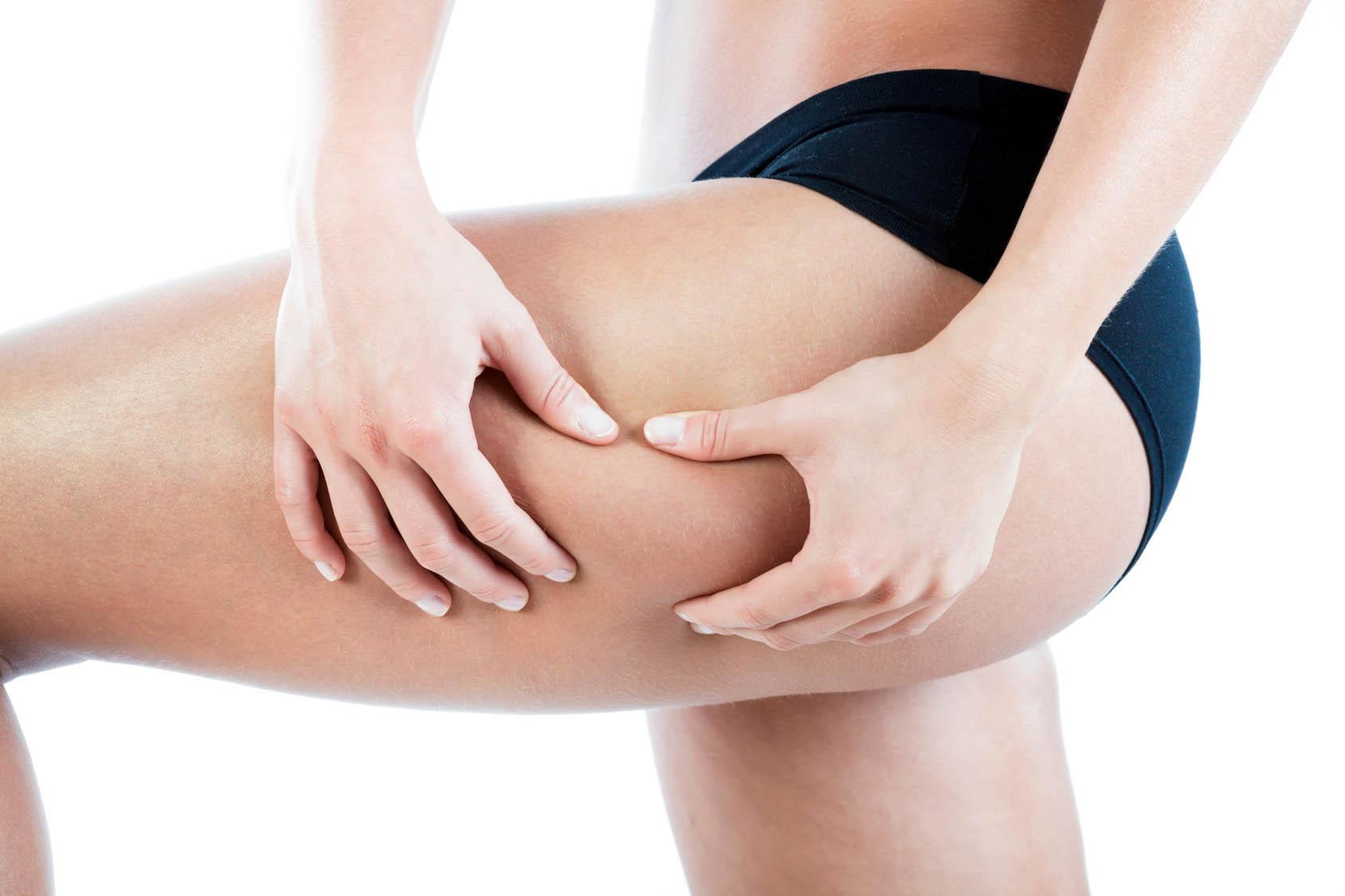 La battaglia contro la cellulite? Ecco i cibi giusti per vincerla