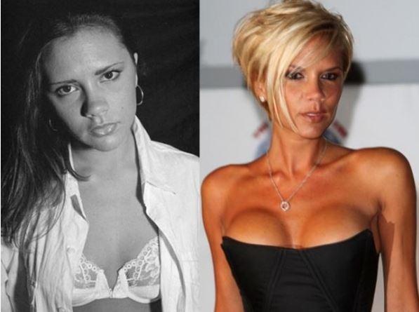 Le vip e gli interventi di chirurgia estetica al seno