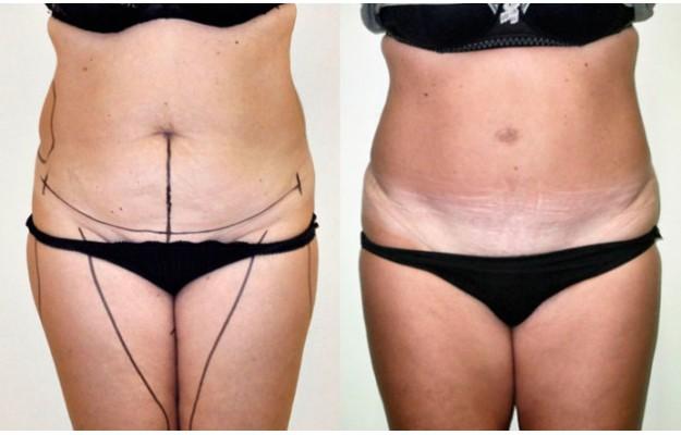 Prima e dopo l'addominoplastica: scopri i risultati