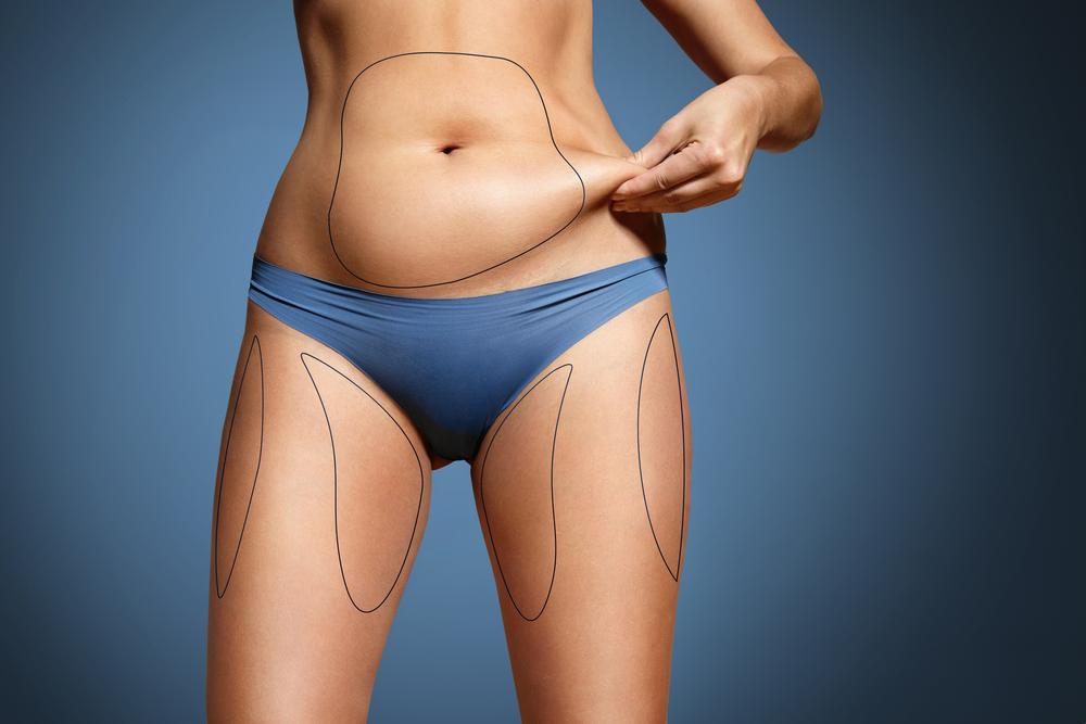 Prima e dopo la Liposuzione: ammira anche tu i risultati
