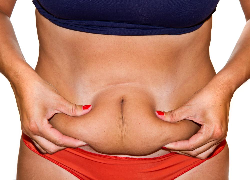 Liposuzione? Un intervento sicuro e senza particolari controindicazioni